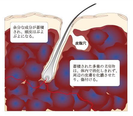 「頭皮のぶよぶよ」の画像検索結果